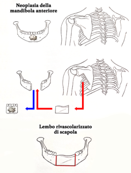 neoplasia mandibola